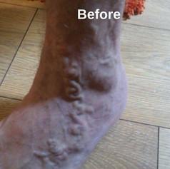 ולנטינה גליק - טיפול הומאופתי בדליות. מצב לפני הטיפול