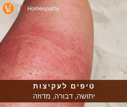 טיפים לעקיצות - יתושה, דבורה, מדוזה