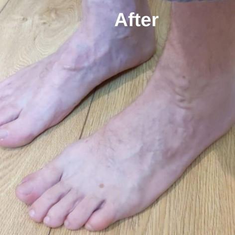 Валентина Глик - Гомеопатическое лечение варикозного расширения вен. Состояние после лечения