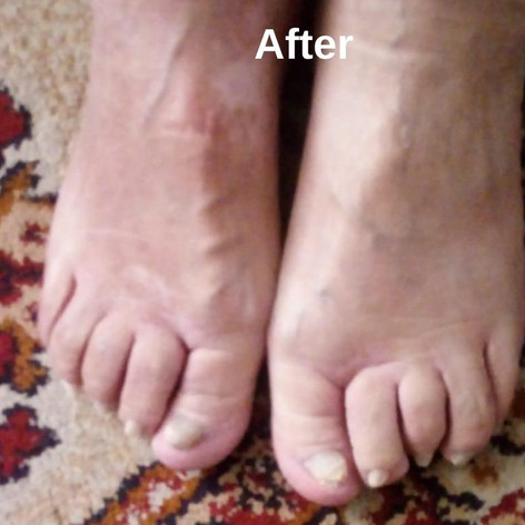 Валентина Глик - гомеопатия от экземы и грибка ногтей. Состояние после лечения.