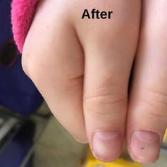 ולנטינה גליק - הומאופתיה לטיפול בעיוות בציפורנייםאצל בת 8.