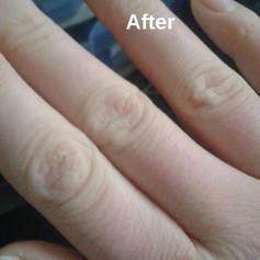 ולנטינה גליק - טיפול הומאופתי בסדקים חוזרים בעור.