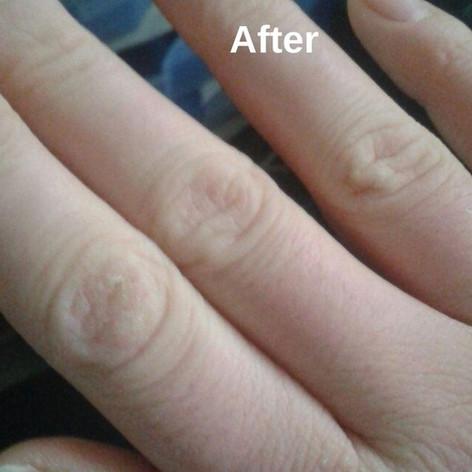 Валентина Глик - Гомеопатическое лечение повторяющихся трещин на коже.