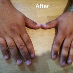 ולנטינה גליק - טיפול הומאופתי ביבלות מצב אחרי הטיפול