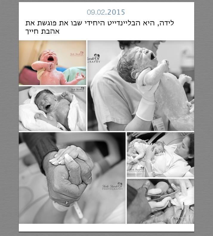 צילומי לידה