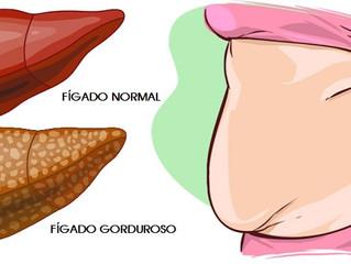 Esteatose Hepática - Fígado Gorduroso
