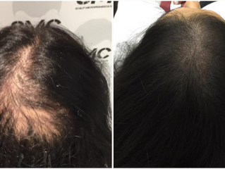 Scalp Micropigmentation Will Be Available At All Hair Transplant Clinics As An Alternate Treatment O