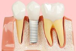 implante-dentário-em-zircônia-e-estética