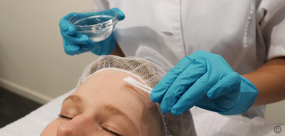 chemische, medische, peelings, gezicht, acne, littekens, pigment, huidveroudering, huidverslapping, huidtherapie, huidtherapeut, huid, skincare