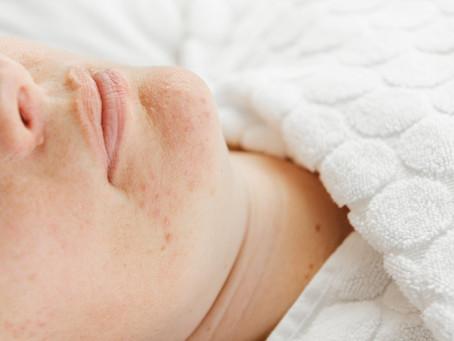 Acne en wat de huidtherapeut voor je kan betekenen