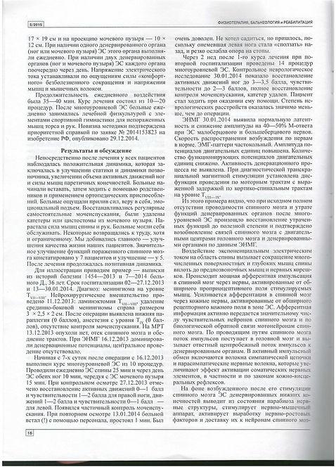 Реабилатация при помощи Тренажера Маркелова