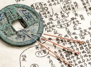 acupuncture-ancient-medicine_edited.jpg