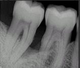 Autologos dentin graft histology