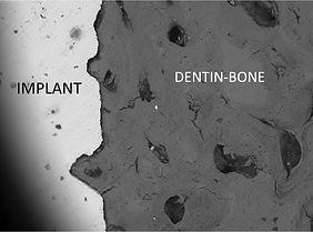 Dentin Bone.jpg