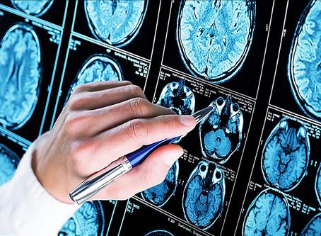 COVID-19 может вызвать риск развития болезни Альцгеймера