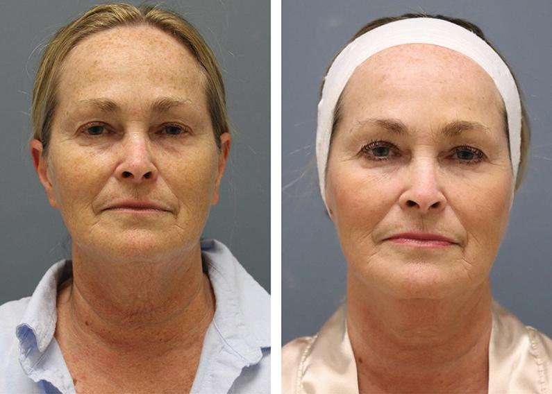 Пример результатов до и после процедуры rf лифтинг лица