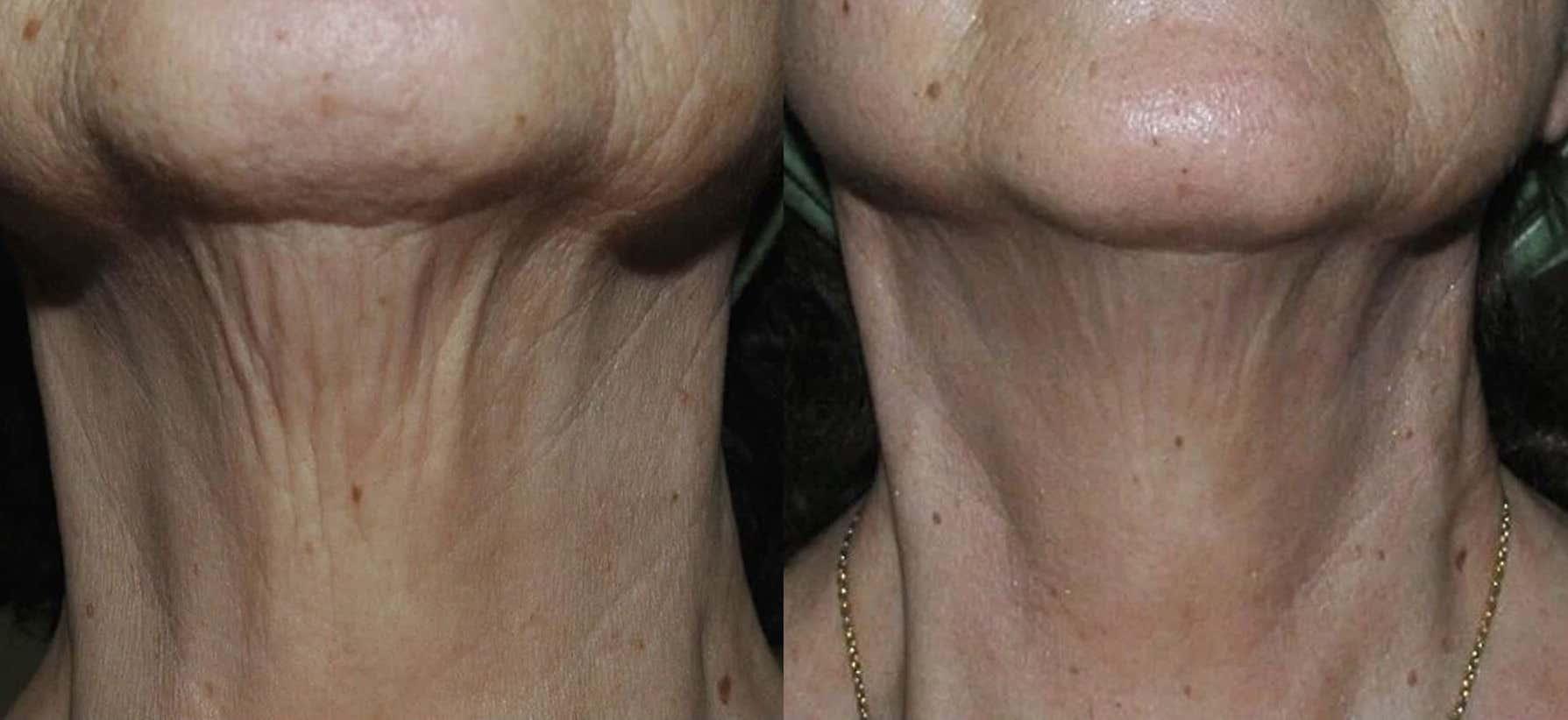 Результат рф лифтинг шеи до и после