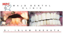 عيادة الاسنان .الدكتور . اسلام امام