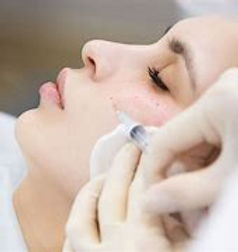 Nappage Mesotherapy - Needle