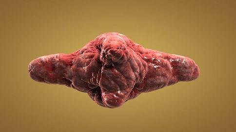 Tumor_5674323_M.jpg