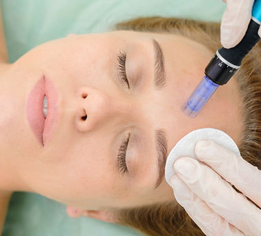 Cosmetologist making mesotherapy injection. Microneedle mesotherapy. Microneedling Thunder Bay, face messag Thunder Bay, Neck and decollte Microneedling , Microneedling anti aging skincare ,  medical clinic in Thunder Bay to offer such an extensive range of advanced skincare