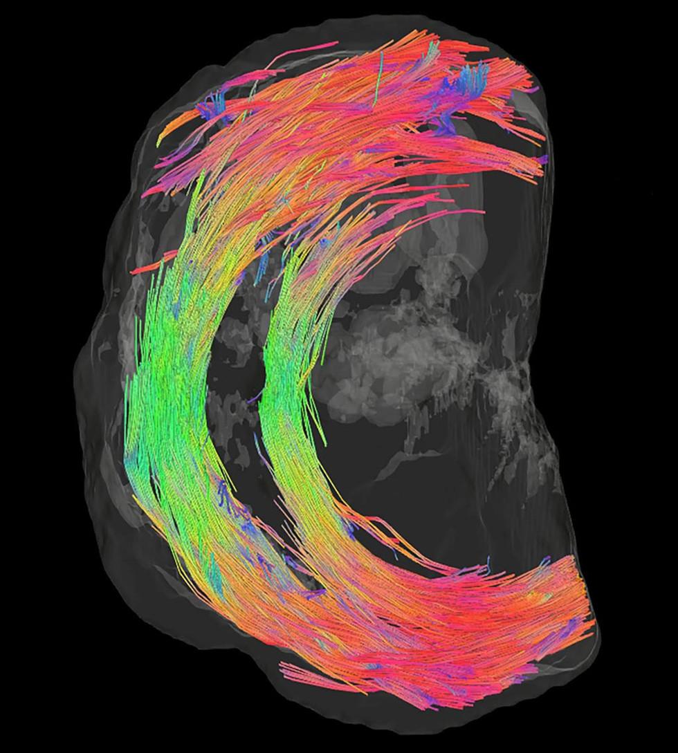 RM ayuda a determinar arquitectura en 3D del cuello uterino