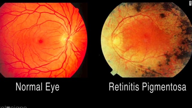 Image result for Retinitis pigmentosa