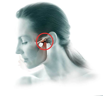 Physical therapy for TMJ, TMD, neck pain, jaw pain, shoulder pain, ringing in the ears, pressure in the ears, altered bite, locking of jaw, clicking jaw