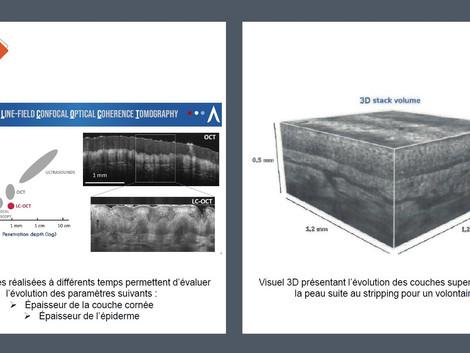 Des études cliniques innovantes grâce au LC-OCT de DAMAE Medical