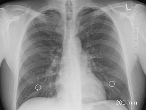 Quand l'intelligence artificielle détecte le cancer du poumon