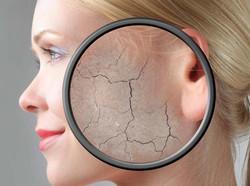 Got Skin Problem?