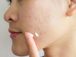 Got Acne Problem?