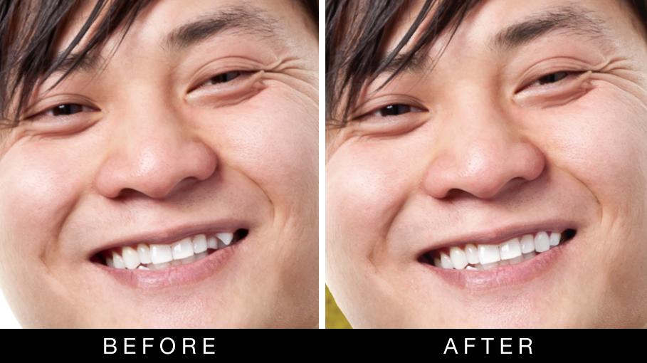 Photoshop Dental Work