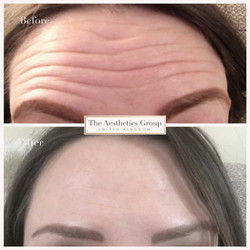 Vertical Forehead Lines