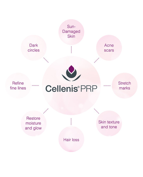 cellenis-prp-therapy-effects.jpg