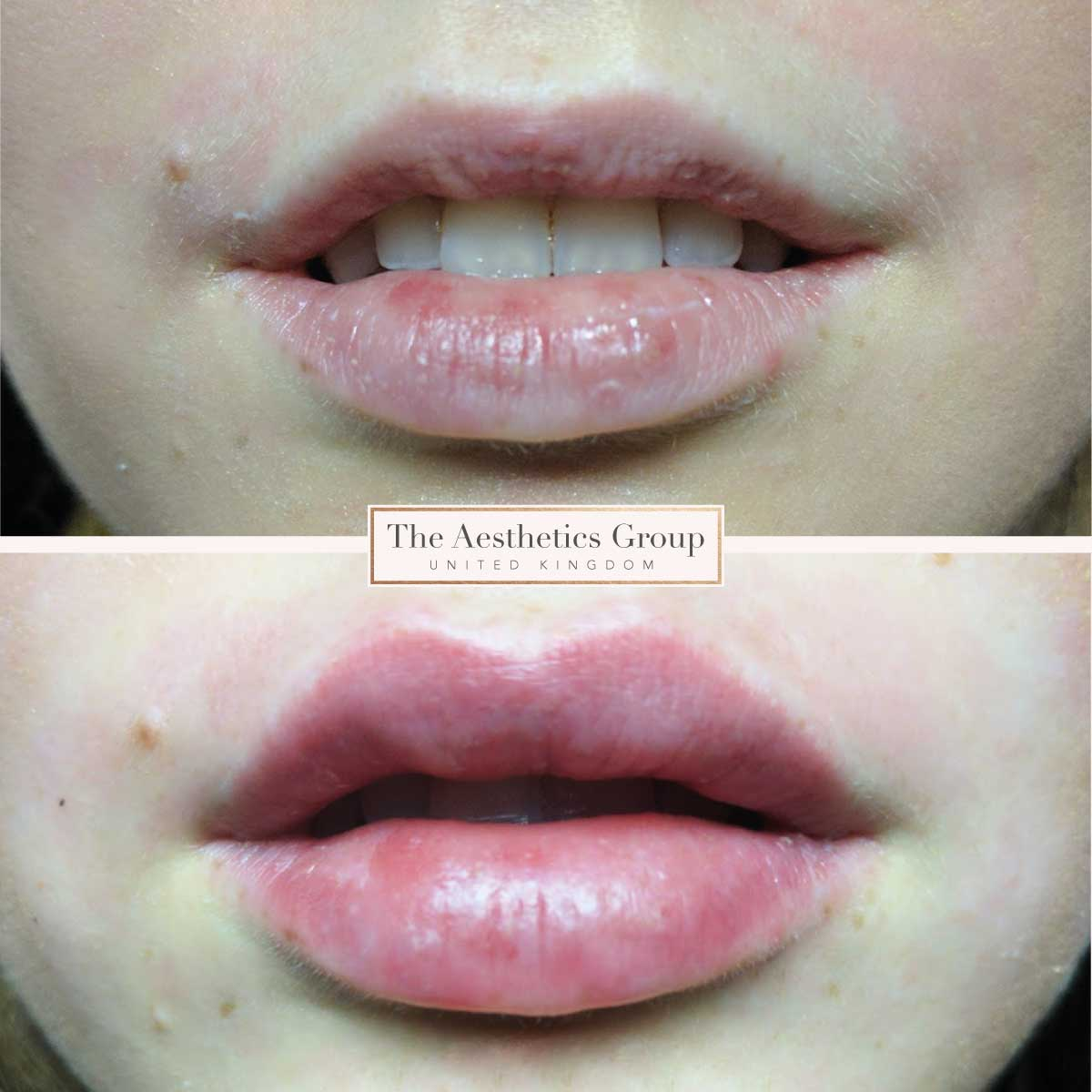 1ml Lip Fillers