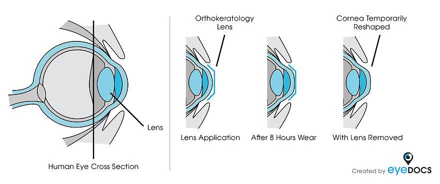 contact lenses exam gilroy