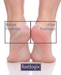 footlogix 3.jpg