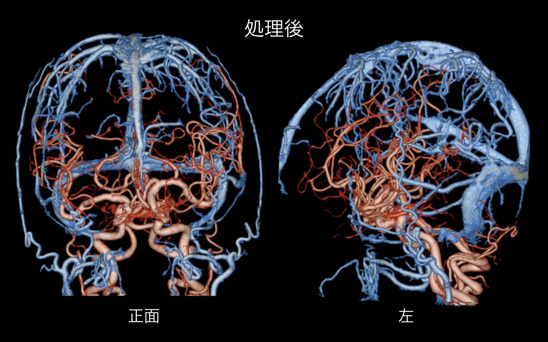 頭部脳血管処理.001