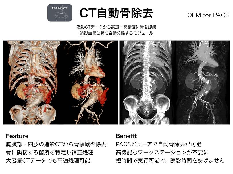 CT骨除去モジュール