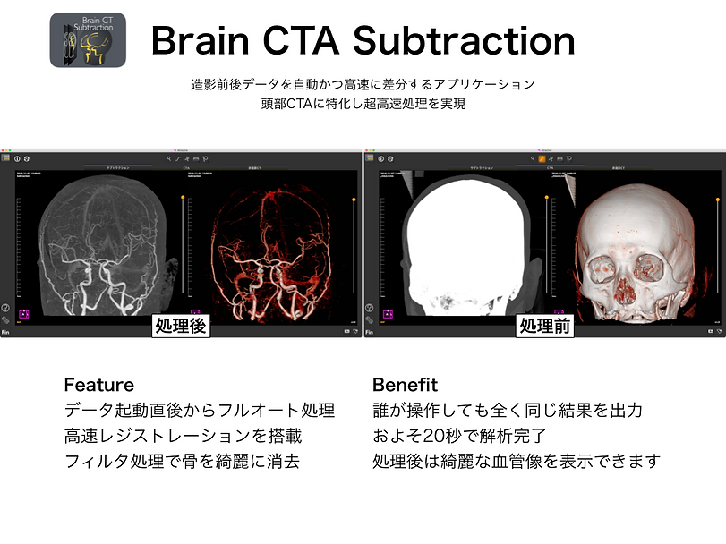 Brain CTA subtraction