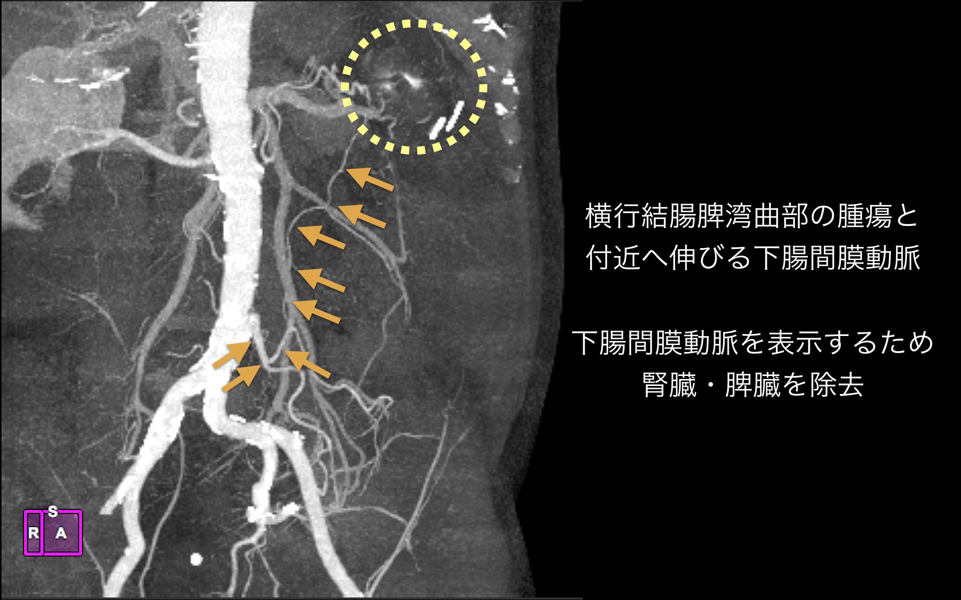 下腸間膜動脈と腫瘍.002