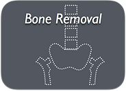 BoneRemoval.png