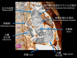 大動脈解離(StanfordA)