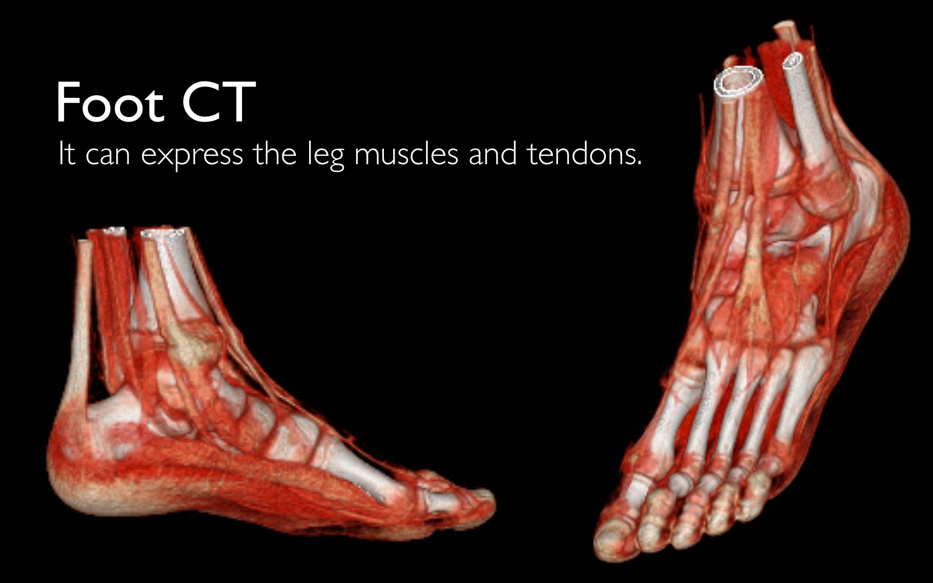 Foot CT