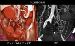 下腸間膜動脈と腫瘍.001