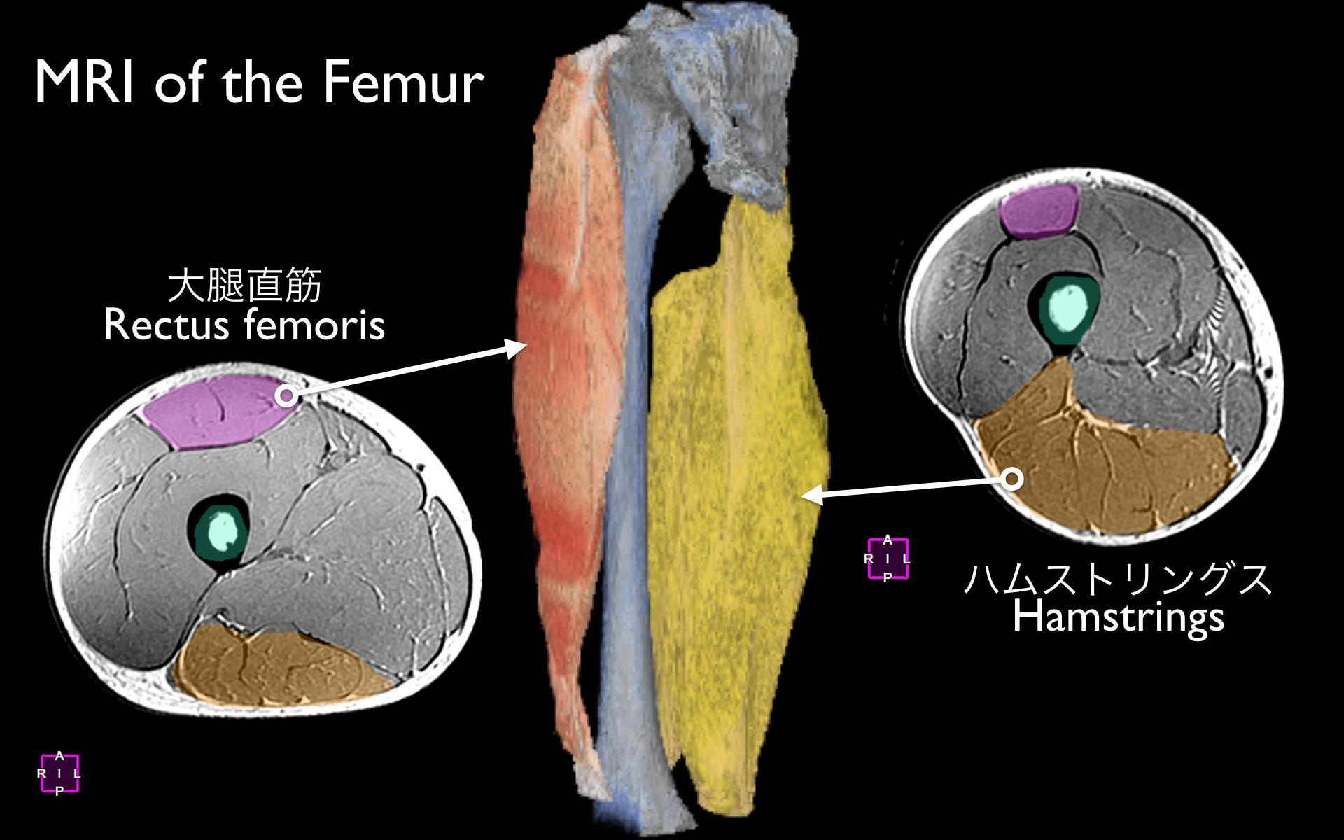 大腿部MRI