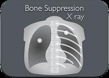 BoneSuppresion.png