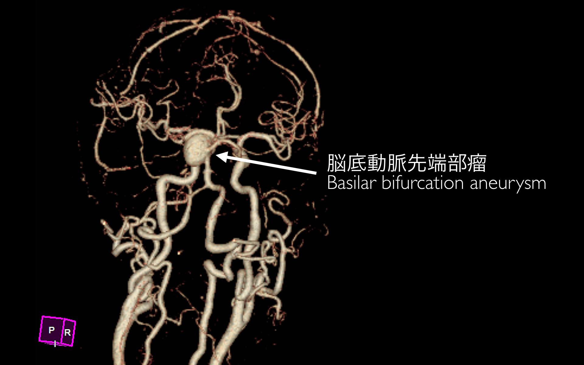 脳底動脈瘤