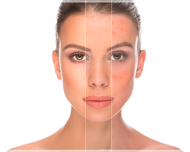 tratamiento-acne-cabecera-removebg.png